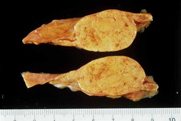 Adrenal Gland Photograph - Adrenal Gland Tumour by Cnri/science Photo Library