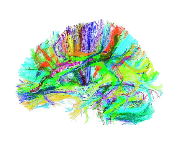 Wall Art - Photograph - Advanced Mri Brain Scan by Philippe Psaila/science Photo Library