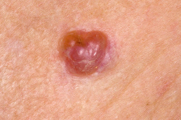 Carcinoma Wall Art - Photograph - Basal Cell Carcinoma by Dr P. Marazzi/science Photo Library