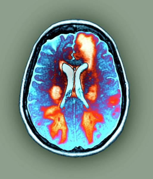 Wall Art - Photograph - Brain In Toxic Encephalopathy by Zephyr