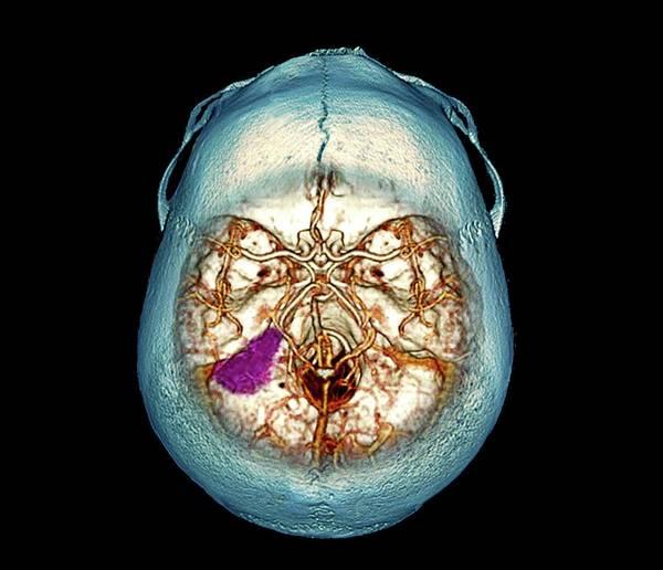 Brain Tumor Wall Art - Photograph - Brain Tumour by Zephyr