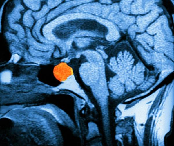 Neoplasm Photograph - Brain Tumour by Zephyr/science Photo Library