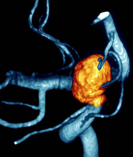 Cerebral Angiogram Photograph - Carotid Aneurysm by Zephyr/science Photo Library