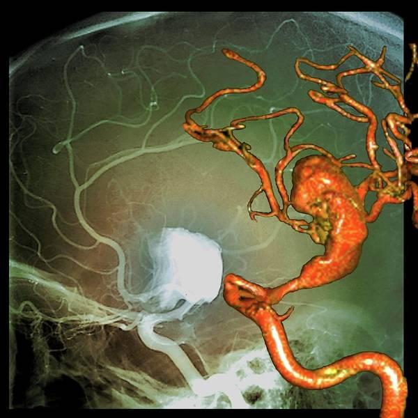Cerebral Angiogram Photograph - Cerebral Aneurysm by Zephyr/science Photo Library