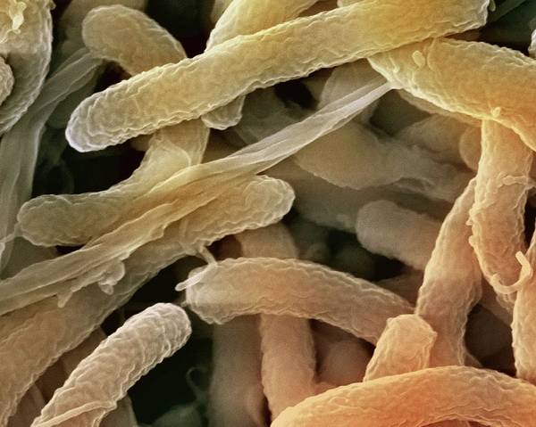 Wall Art - Photograph - Cholera Bacteria by Ami Images/science Photo Library