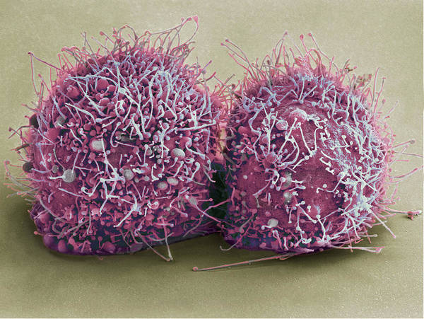 Wall Art - Photograph - Dividing Hela Cells, Sem by Science Source