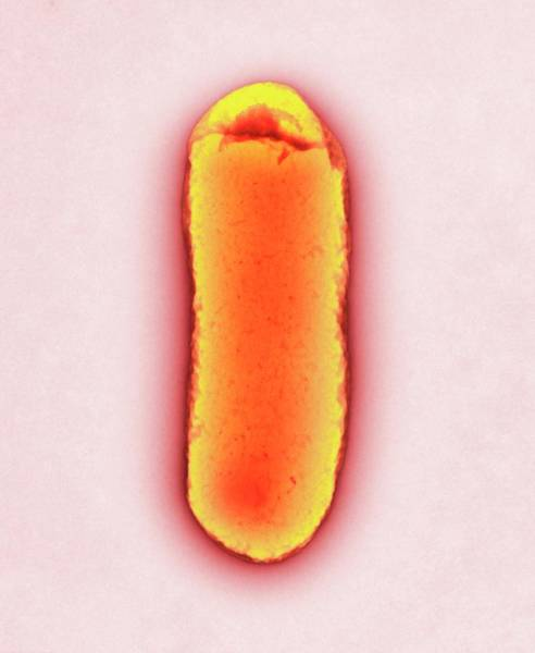 Escherichia Coli Wall Art - Photograph - E. Coli Bacterium by Centre For Infections/public Health England/science Photo Library