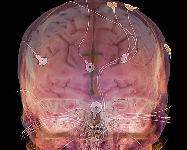 Cerebral Angiogram Photograph - Electroencephalography by Zephyr