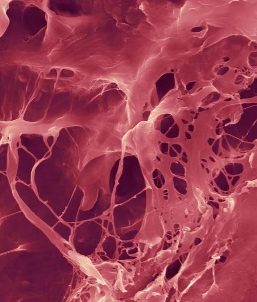 Wall Art - Photograph - Extracellular Matrix by Dennis Kunkel Microscopy/science Photo Library