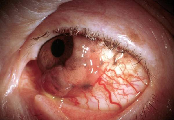 Malignant Wall Art - Photograph - Eye Cancer by Sue Ford/science Photo Library