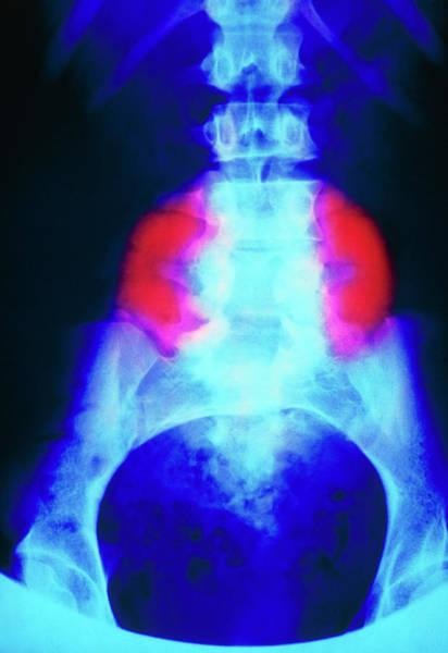 Wall Art - Photograph - False-colour X-ray Of Meningomyelocele by Science Photo Library