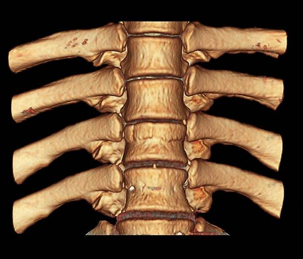 Vertebrae Photograph - Fractured Spine by Zephyr/science Photo Library