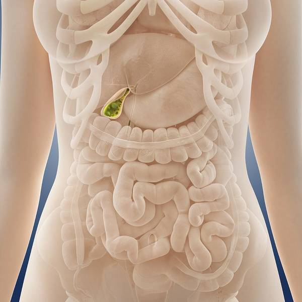 Cystic Duct Photograph - Gallstones, Artwork by Science Photo Library