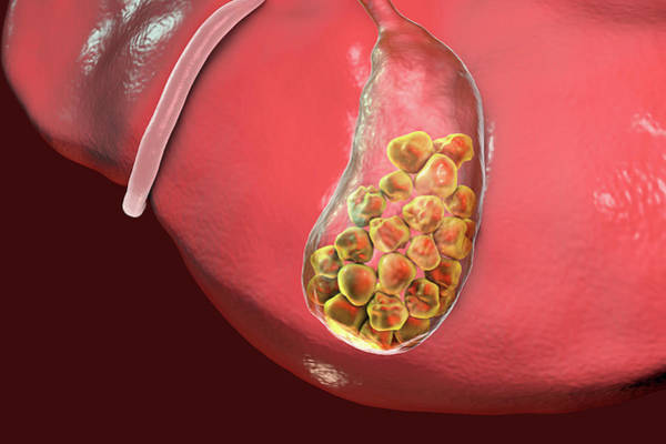 Cystic Duct Photograph - Gallstones by Kateryna Kon/science Photo Library