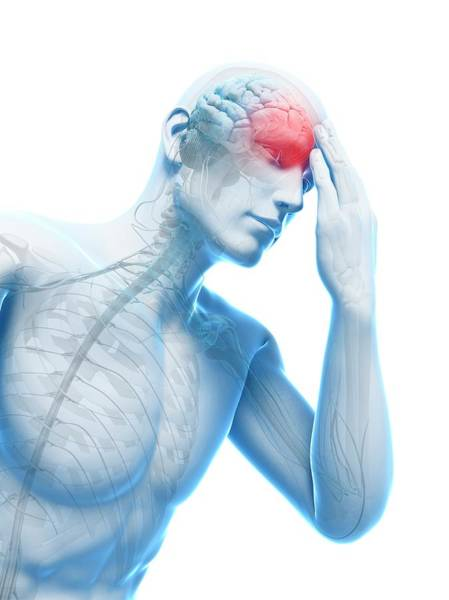 Head And Shoulders Photograph - Headache by Sciepro/science Photo Library