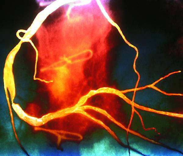 Heart Attack Wall Art - Photograph - Heart Disease by Zephyr/science Photo Library