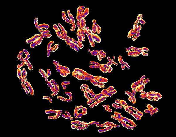 Inheritance Wall Art - Photograph - Human Chromosomes by Alfred Pasieka