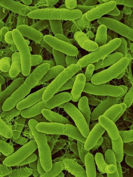 Wall Art - Photograph - Janibacter Hoylei by Dennis Kunkel Microscopy/science Photo Library