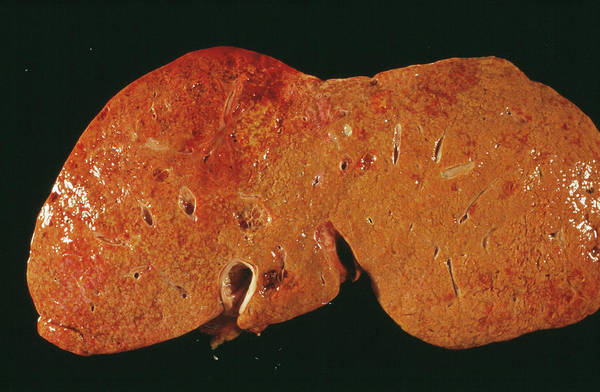 Wall Art - Photograph - Liver Cancer by Cnri/science Photo Library