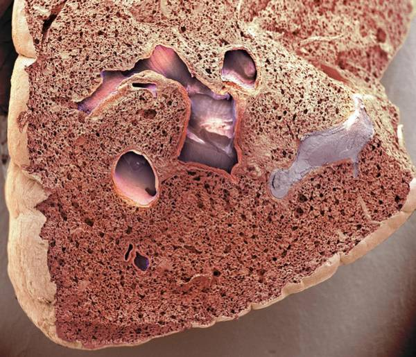Sac Wall Art - Photograph - Lung Tissue by Steve Gschmeissner/science Photo Library