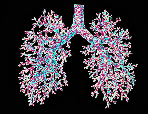 Wall Art - Photograph - Lungs by Alfred Pasieka/science Photo Library