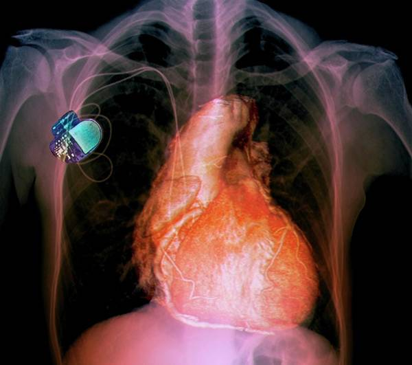 65 Photograph - Pacemaker by Zephyr/science Photo Library