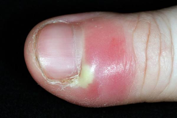 Paronychia Infection Of The Thumb Art Print by Dr P. Marazzi/science Photo Library