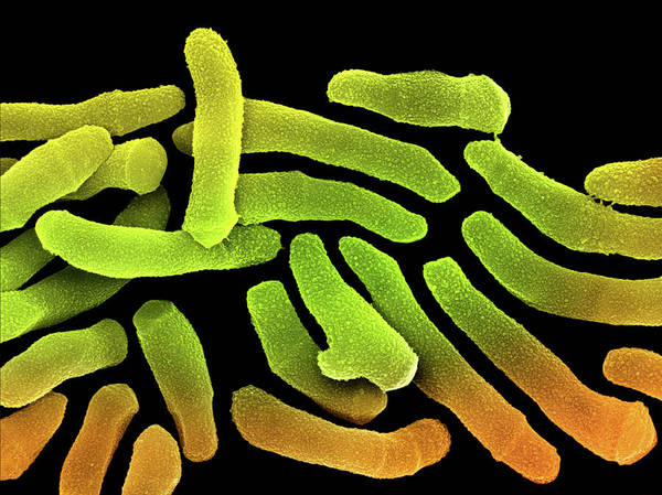 Wall Art - Photograph - Propionibacterium Acnes by Science Photo Library