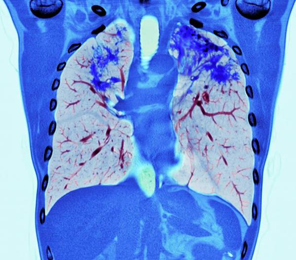False Ribs Wall Art - Photograph - Pulmonary Sarcoidosis by Dr P. Marazzi/science Photo Library