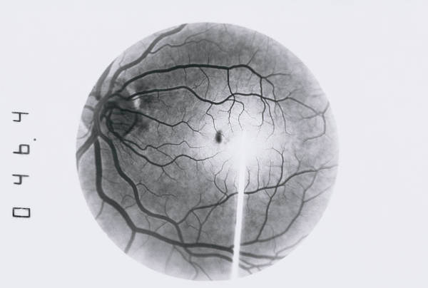 Wall Art - Photograph - Retinal Blood Vessel Disorder by Paul Parker/science Photo Library