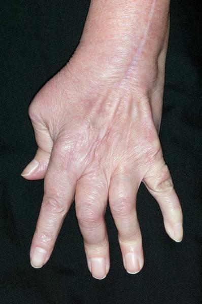 Chronic Pain Wall Art - Photograph - Rheumatoid Arthritis by Dr P. Marazzi/science Photo Library