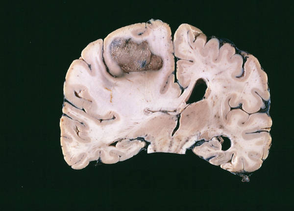 Neoplasm Photograph - Secondary Brain Cancer by Cnri/science Photo Library