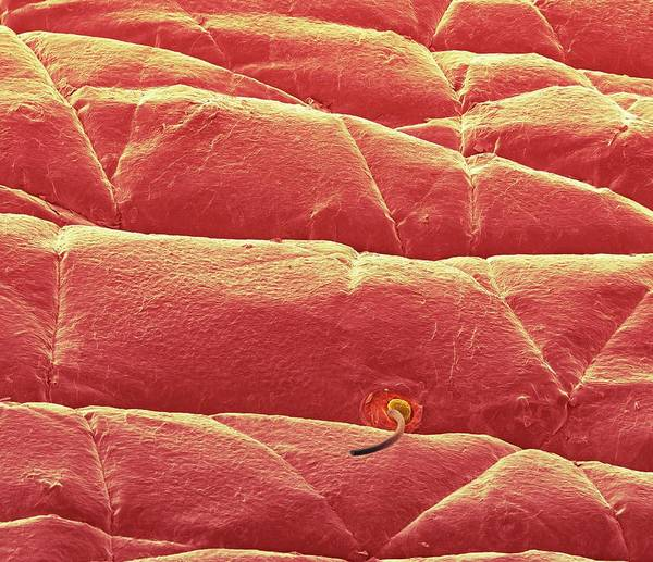 Waxy Photograph - Skin Surface by Science Photo Library