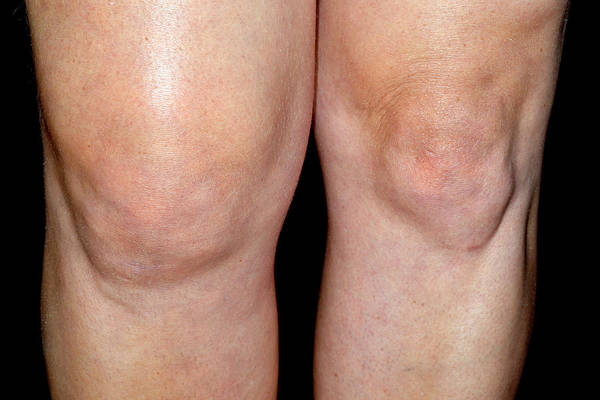 Wall Art - Photograph - Swollen Knee by Dr P. Marazzi/science Photo Library