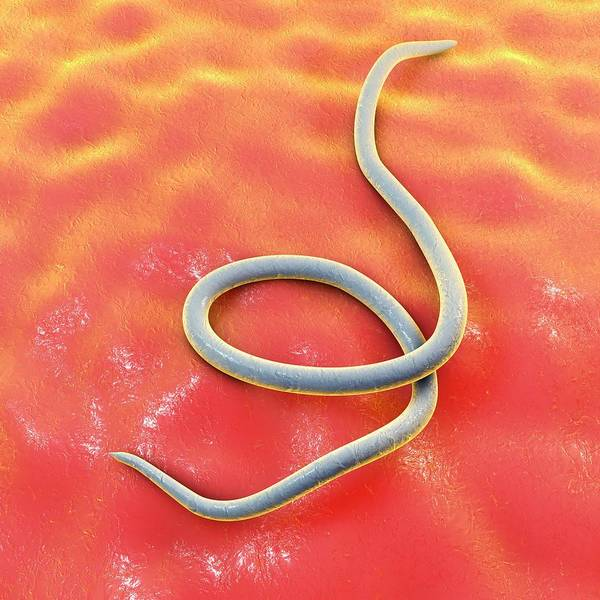 Fatty Tissue Photograph - Threadworm by Kateryna Kon/science Photo Library