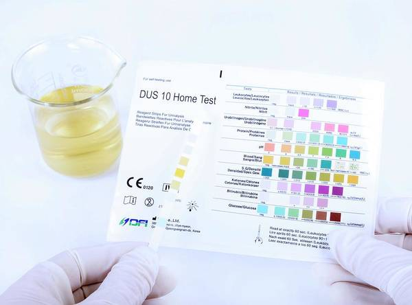 Specific Gravity Wall Art - Photograph - Urine Home Test Kit by Cordelia Molloy