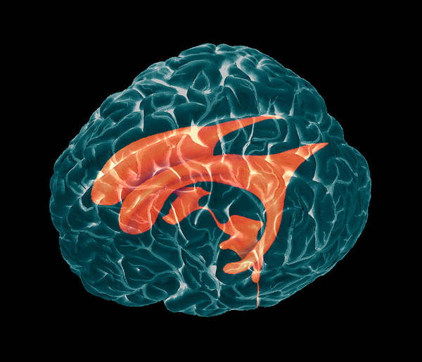 Neurology Photograph - Ventricles Of Brain by Zephyr/science Photo Library