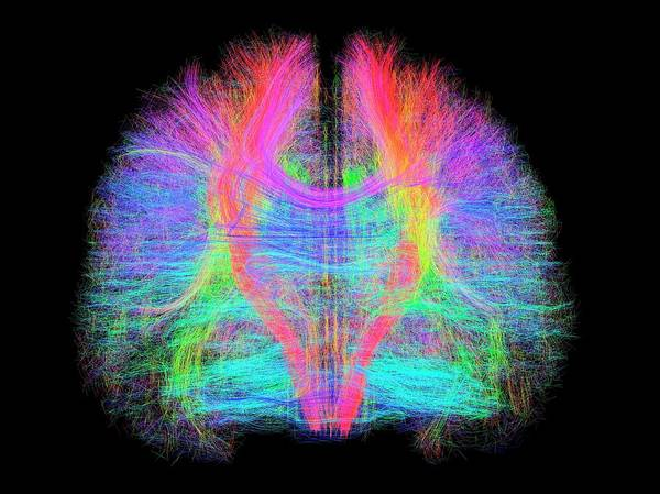 Resonance Wall Art - Photograph - White Matter Fibres Of The Human Brain by Alfred Pasieka/science Photo Library