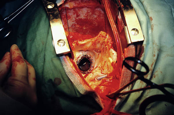 Wall Art - Photograph - Heart Surgery by Antonia Reeve/science Photo Library