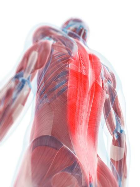 Muscle Tissue Digital Art - Back Pain, Conceptual Artwork by Sciepro