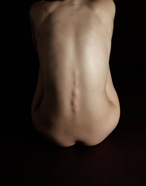 Wall Art - Photograph - Woman's Body by Kate Jacobs/science Photo Library