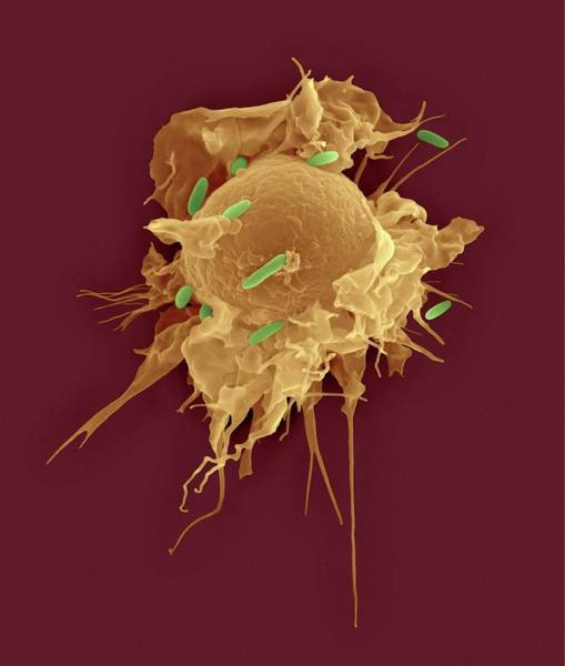 Wall Art - Photograph - Alveolar Tissue Macrophage Phagocytosis by Dennis Kunkel Microscopy/science Photo Library