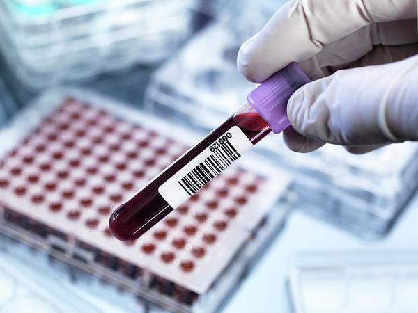 Code Photograph - Blood Testing by Tek Image