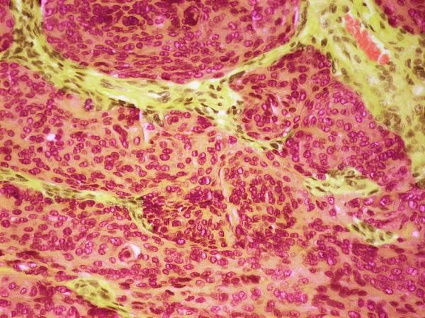 Brain Cancer Wall Art - Photograph - Brain Tumour by Steve Gschmeissner