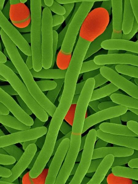 Anaerobe Wall Art - Photograph - Clostridium Phytofermentans by Dennis Kunkel Microscopy/science Photo Library