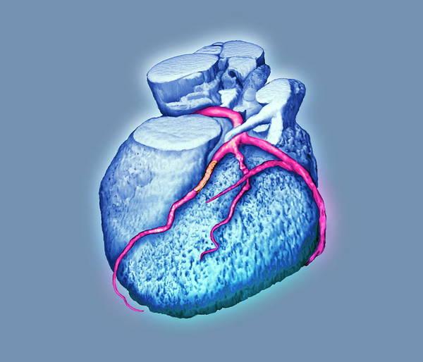 Heart Attack Wall Art - Photograph - Coronary Angioplasty by Zephyr/science Photo Library