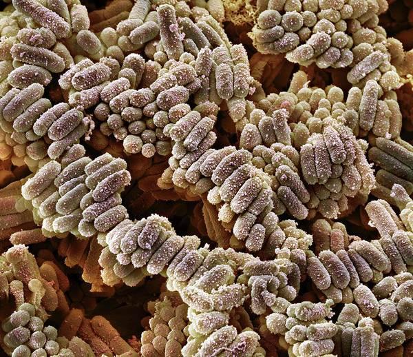 E Coli Photograph - E. Coli Bacteria by Steve Gschmeissner