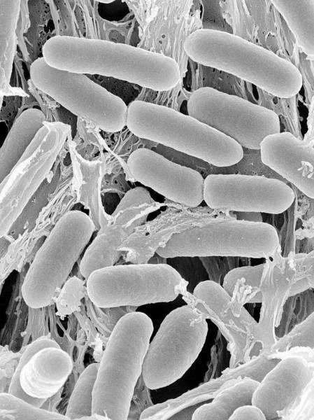 Wall Art - Photograph - Escherichia Hermannii Rod Prokaryote by Dennis Kunkel Microscopy/science Photo Library