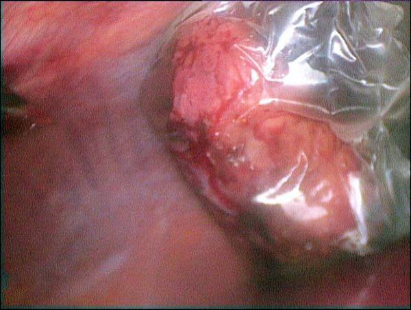 Internal Organs Photograph - Gallbladder Removal Surgery by Dr P. Marazzi/science Photo Library