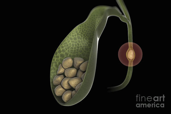 Common Bile Duct Photograph - Gallstones by Science Picture Co